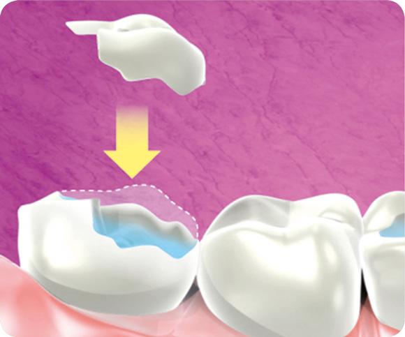 onlay-dentaire-docteur-partouche