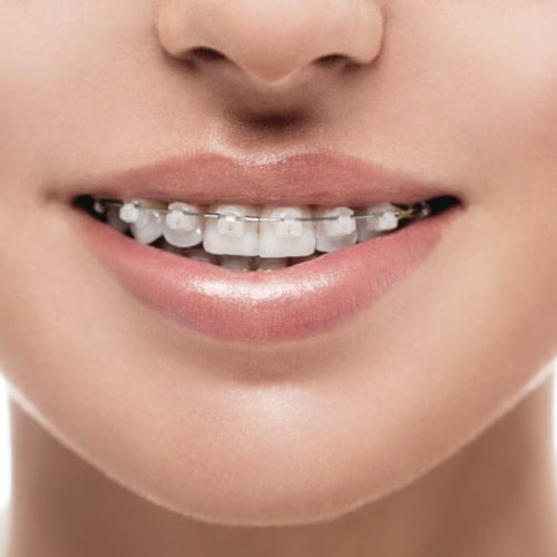 dental-expert-orthodontie-traitement-dentiste-soins-dentaires