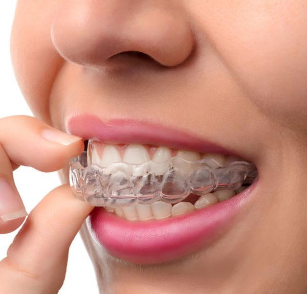orthodontie-dental-expert-clinique-dentaire-dentiste-traitement